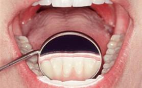 В борьбе за красивую улыбку: правила ухода за зубами