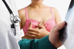 Бюстгальтер провоцирует рак груди