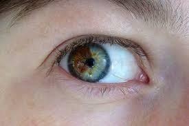 Цвет глаз легко меняется навсегда за 15 минут