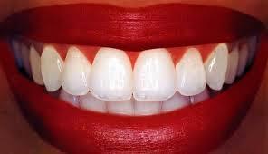 Врачи открыли тайну белых зубов
