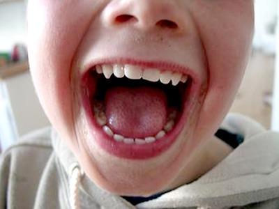 Полный ребенок чаще имеет здоровые зубы