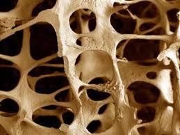 Остеопороз может начаться в детстве