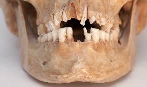 Древние люди жили без зубных болезней