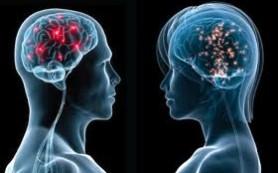 Связи между беременностью и работой женского мозга не существует