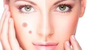 Лечение прыщей салонными косметическими процедурами
