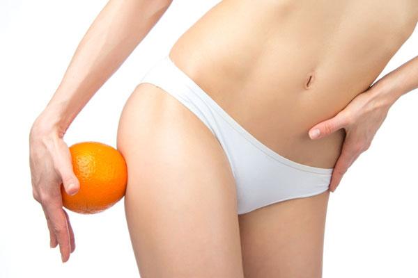 9 полезных советов в борьбе с целлюлитом