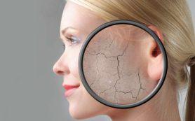 Сухая кожа: проблемы, причины, решения