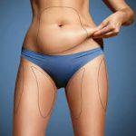 Снижение веса с помощью операций
