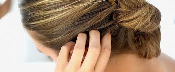 Лечение шелушения кожи головы