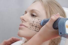 ТОП-5 аппаратных процедур для омоложения лица