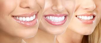 «Какие виды отбеливания зубов лучше и безопаснее?»