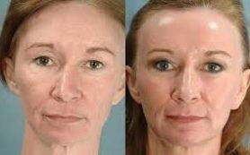Как омолодить кожу лица после 50