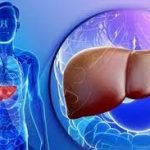 Как проявляются заболевания печени