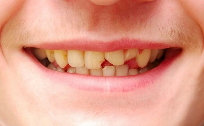 Скол в зубах — в чем могут быть причины?